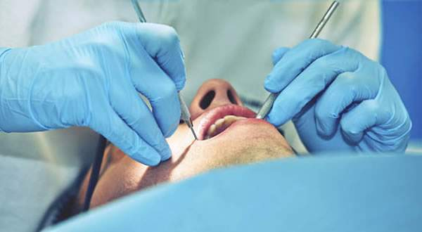 Oral-Surgical-Procedure[1].jpg - Oralna hirurgija